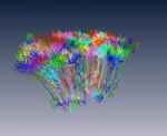 KomplexesGehirn @ bio-pro.de © MPI für medizinische Forschung Heidelberg